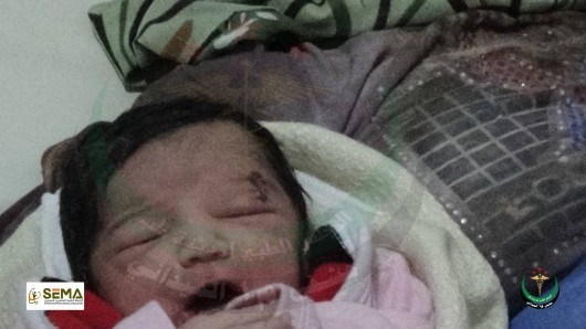 Syrian baby is born with a wound on her forehead