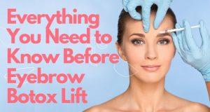Botox for Eyebrow Lift