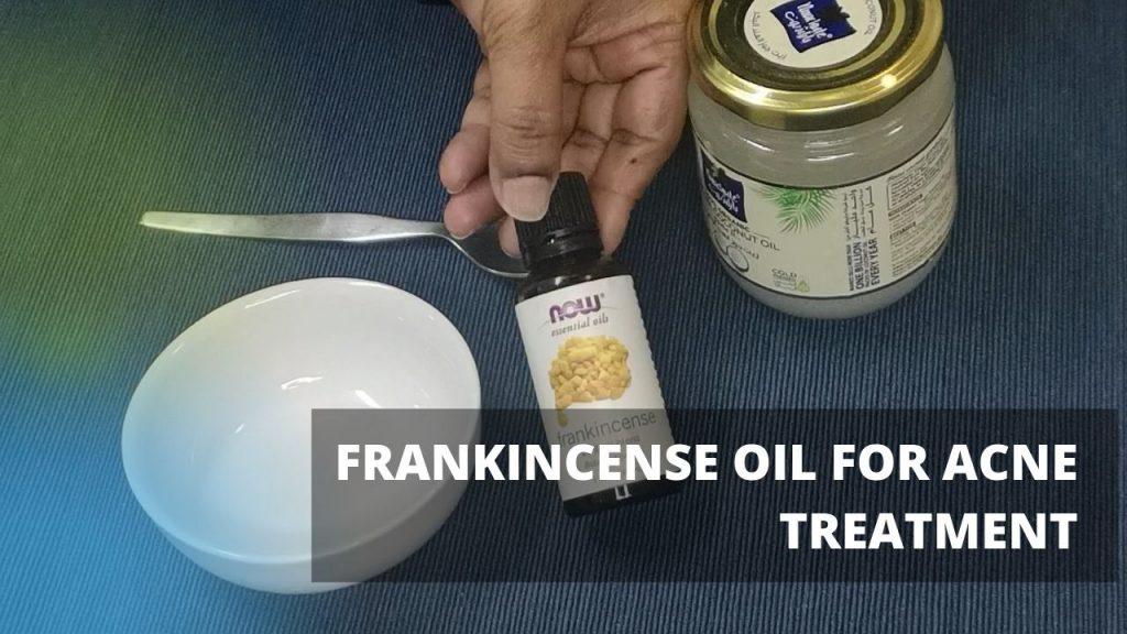 Frankincense Oil Face Mask Acne Homemade Treatment
